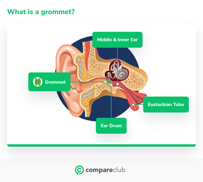 What is a grommet